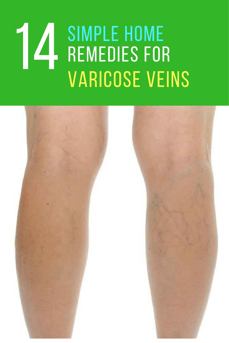 natural cure for spider veins