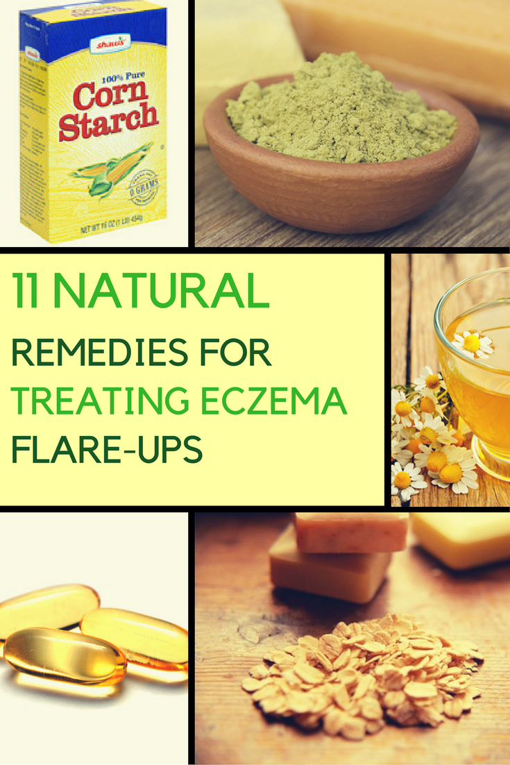 11 Home Remedies on How to Treat Eczema Naturally. | Ideahacks.com