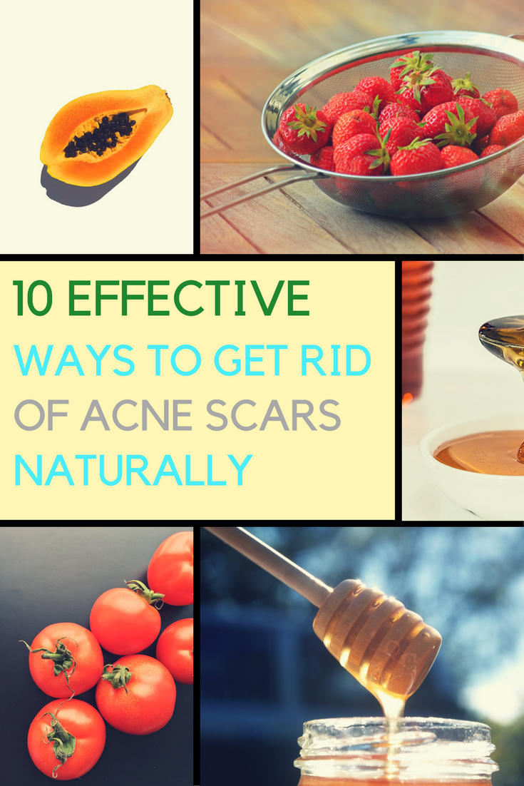 10 Most Effective Ways To Get Rid of Acne Scars & Pimple Marks. | Ideahacks.com