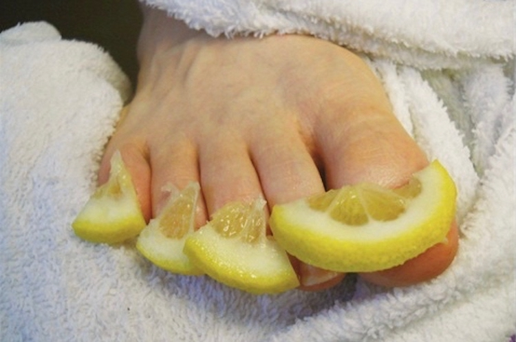 10 Effective Home Remedies For Getting Rid Of Toenail Fungus