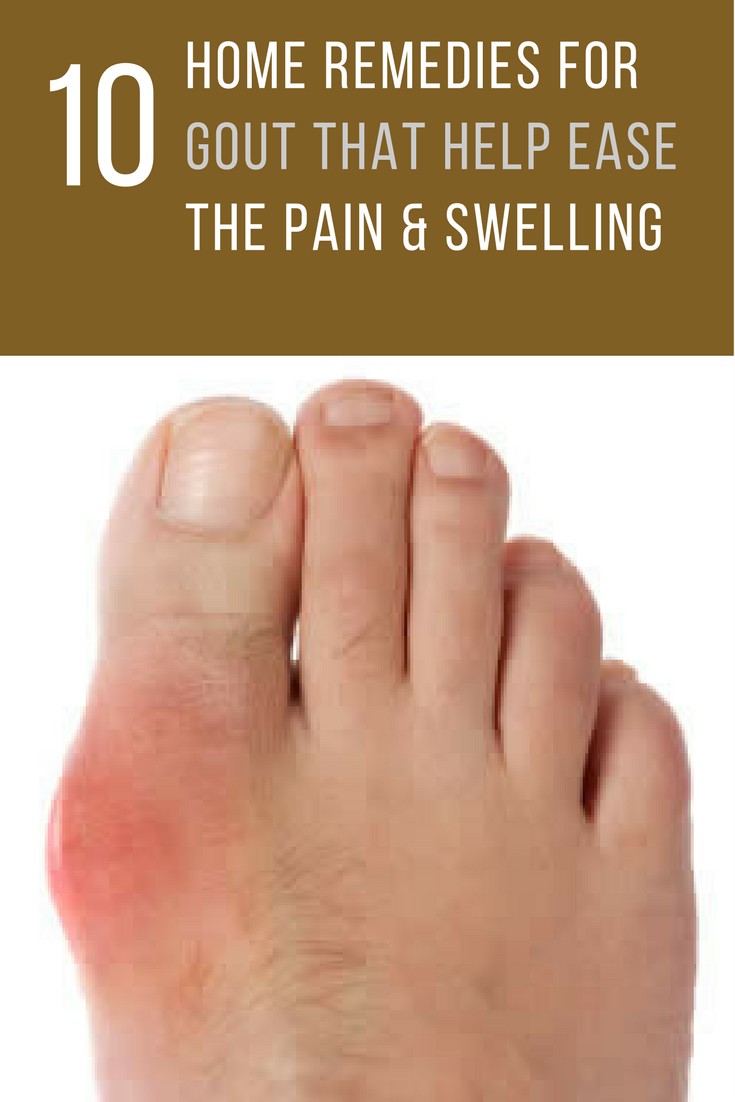 Gout Treatment at Home 42