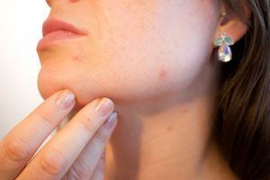 Do You Have Itchy Pimples on Your Skin? Here Are 10 Ways To Deal With The Itching