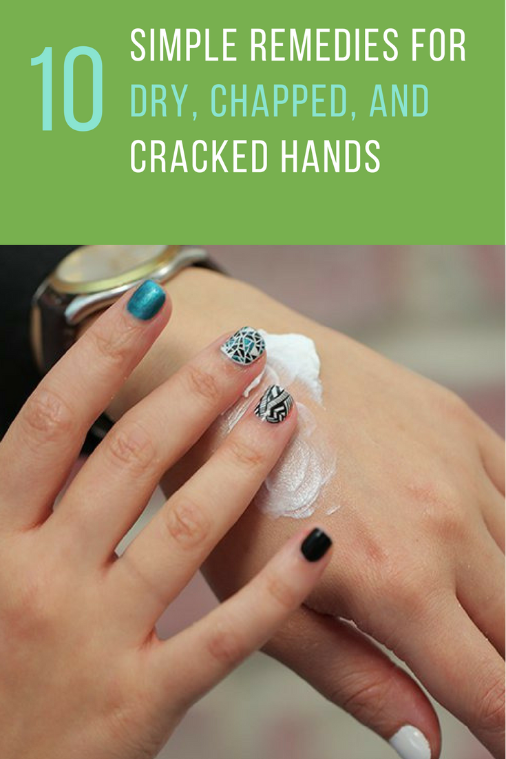dry cracked hands treatment