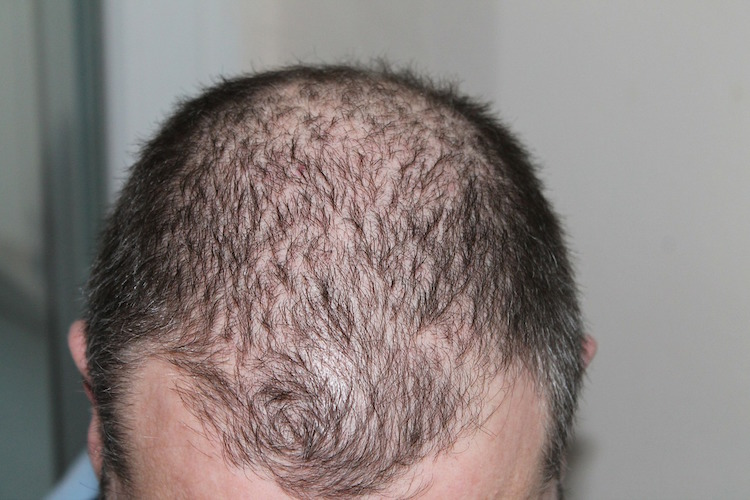 15 Most Powerful Remedies For Thinning Hair in the World