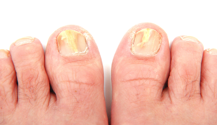 Tea Tree Oil for Toenail Fungus