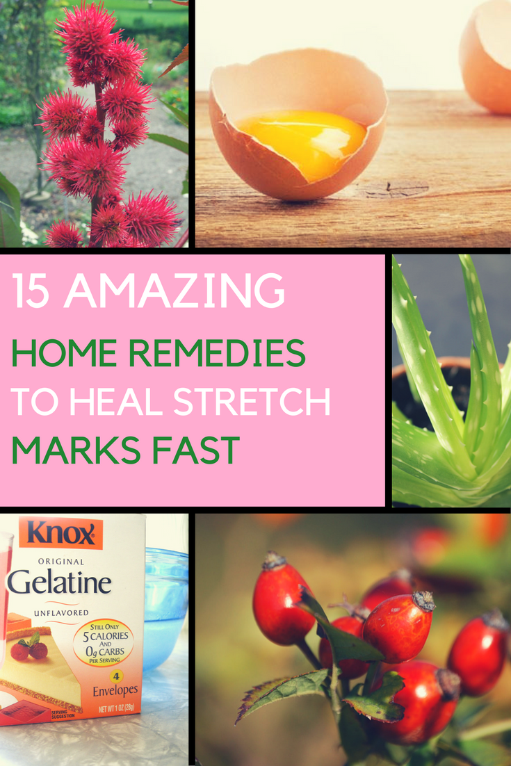 Get Rid of Stretch Marks Fast with THESE 10 Natural Remedies. | Ideahacks.com