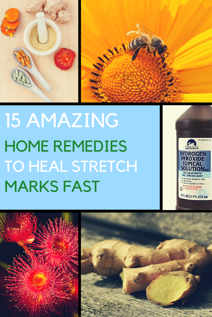 10 Powerful Natural Remedies for Allergy Relief. | Ideahacks.com