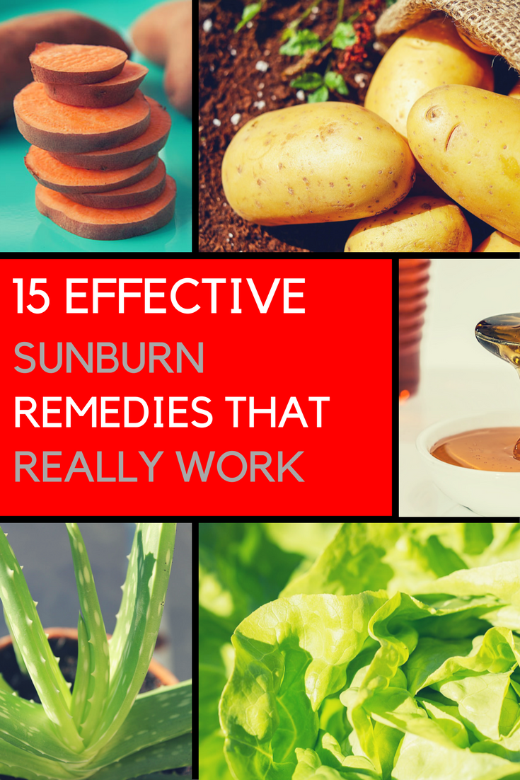 15 Super Effective Home Remedies To Heal Sunburn Quick | Ideahacks.com