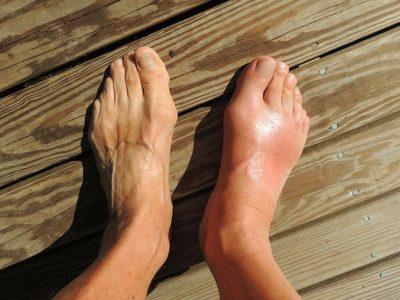 Gout Remedies