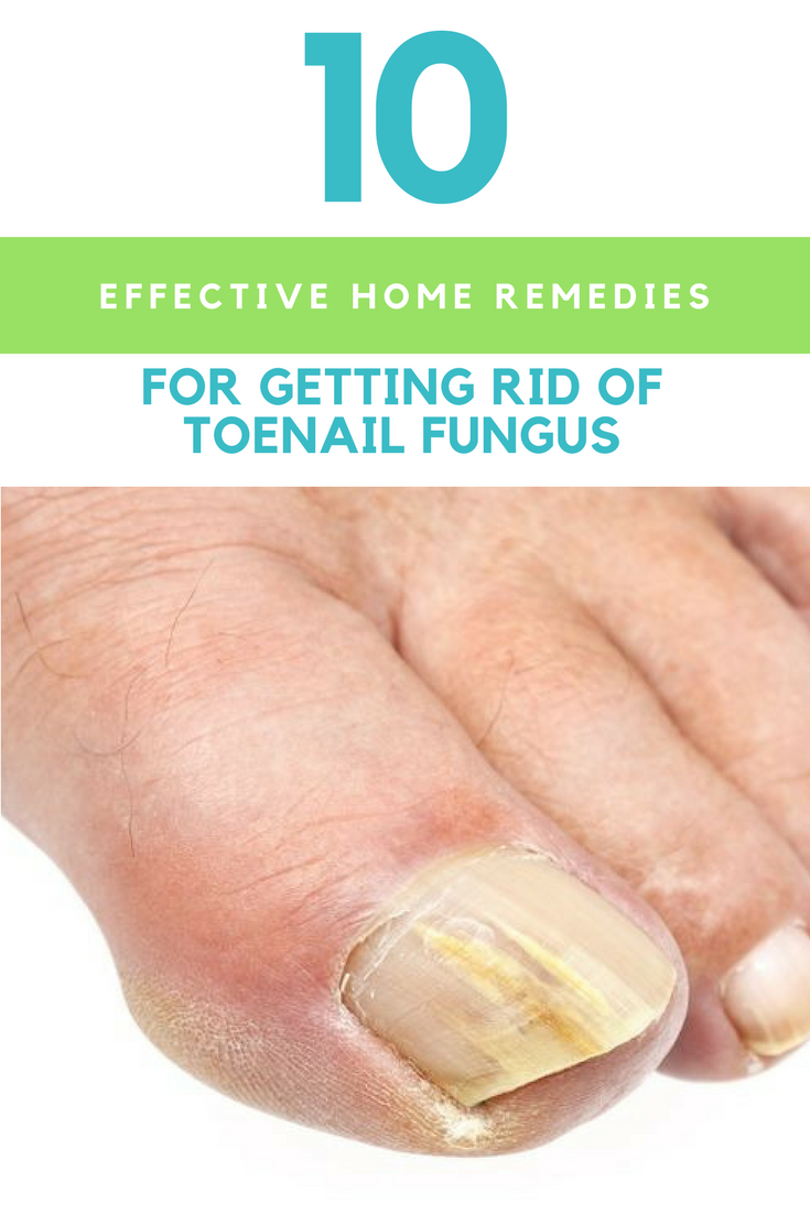 10 Effective Home Remedies For Getting Rid Of Toenail Fungus. | Ideahacks.com