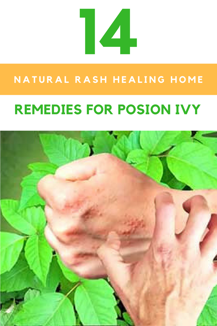 14 Natural Rash Healing Home Remedies For Poison Ivy. | Ideahacks.com