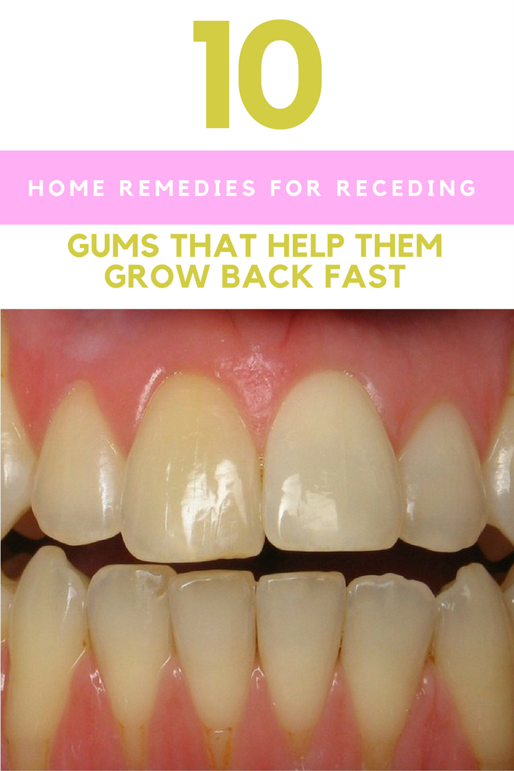 10 Home Remedies For Receding Gums That Help Them Grow Back Fast. | Ideahacks.com
