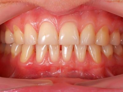 Receding Gums Remedies