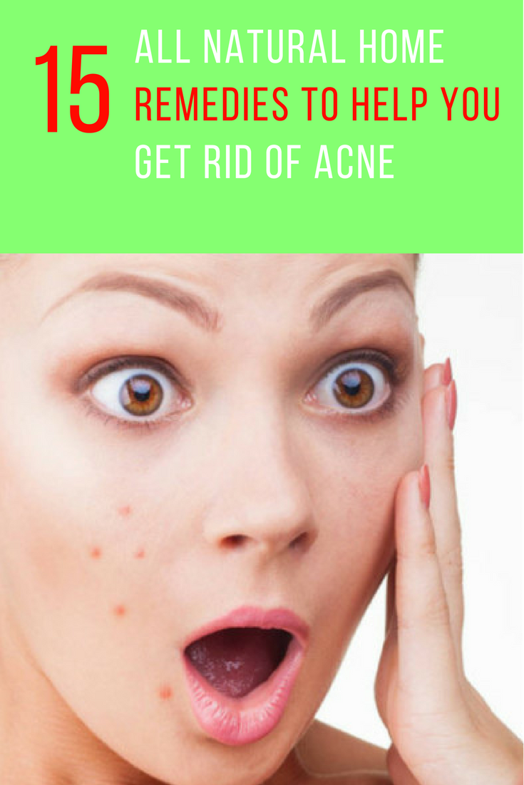 15 All Natural Home Remedies To Help Get Rid Of Acne. | Ideahacks.com