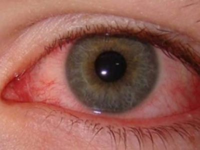 Remedies For Pink Eyes