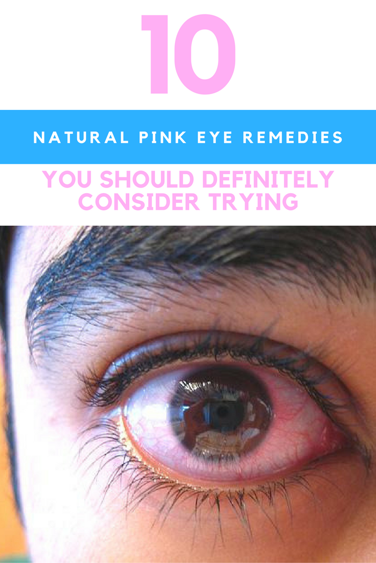 Have Pink Eyes? Here Are 10 Natural Pink Eye Remedies You Should Try. | Ideahacks.com