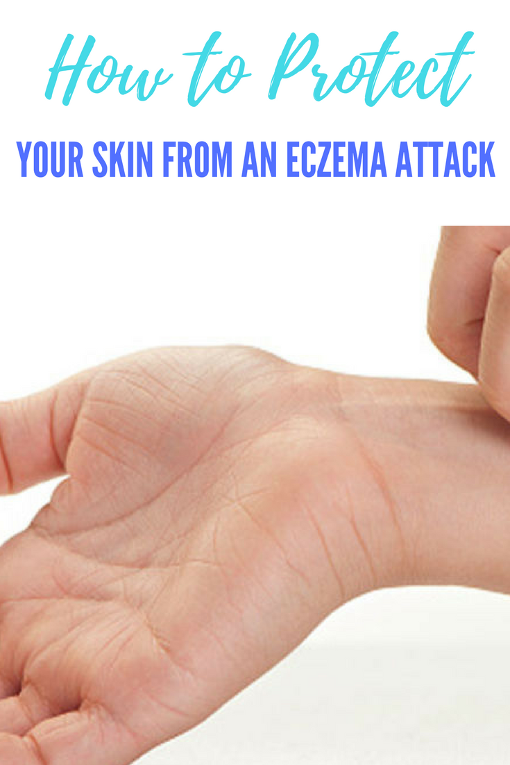 Eczema Attacks! How to Protect the Skin You're In. | Ideahacks.com