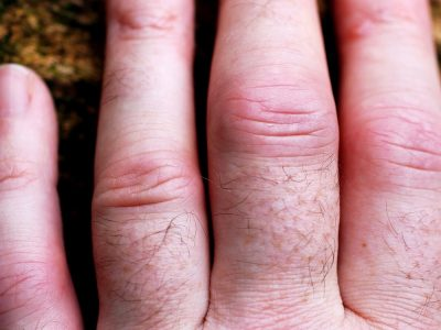 Arthritis Joint Pain Home Remedies Featured