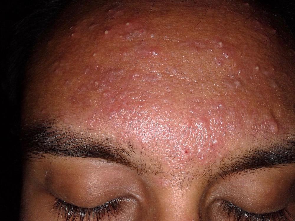 battle acne