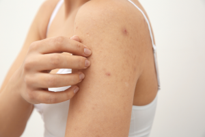 skin that has scabies
