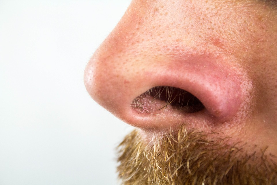 nose of a man with blackheads